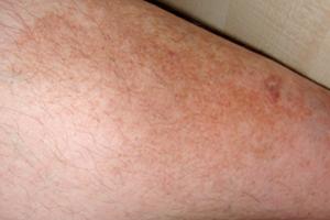 Гиперпигментация на ногах