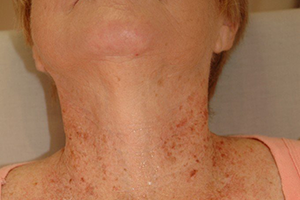 Возрастная пигментация на шее