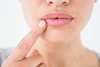 Трещины в уголках губ: причины и способы лечения