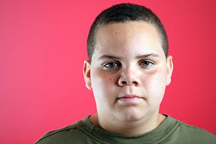 Впервые издано руководство по лечению диабета второго типа у детей от 10 до 18 лет