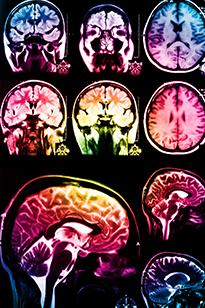Цветные рентгеновские снимки мозга