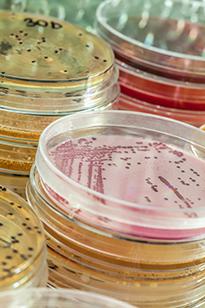 Микробы в чашках Петри