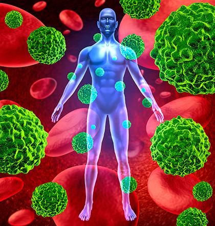 Тело человека, распространение и рост раковых клеток
