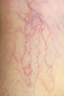 Участок тела с ранней стадией варикоза