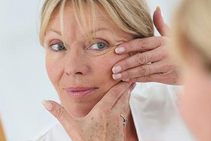 СМАС-лифтинг подтягивает лицо без операции