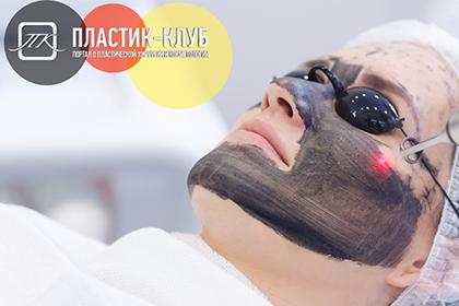Обновление кожи с помощью лазера - современная технология омоложения