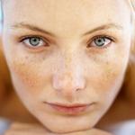 Гиперпигментация кожи, гиперпигментация на лице