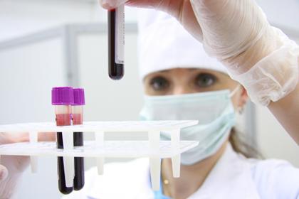 ВПЧ (вирус папилломы человека, папилломавирус)