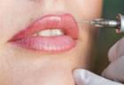 Перманентный макияж губ (татуаж)