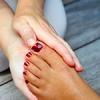 Удаление варикозных вен снижает риск венозной недостаточности