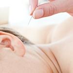 Иглоукалывание укрепляет нервы беременных