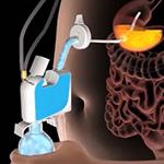 Устройство AspireAssist позволяет удалить пищу из желудка